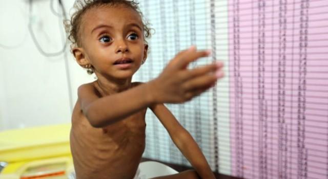 Millions of Yemeni children on the brink of starvation: UN