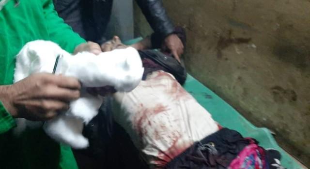 Injured Shopian youth succumbs on way to Srinagar hospital
